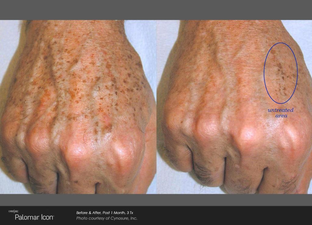age spots treatment
