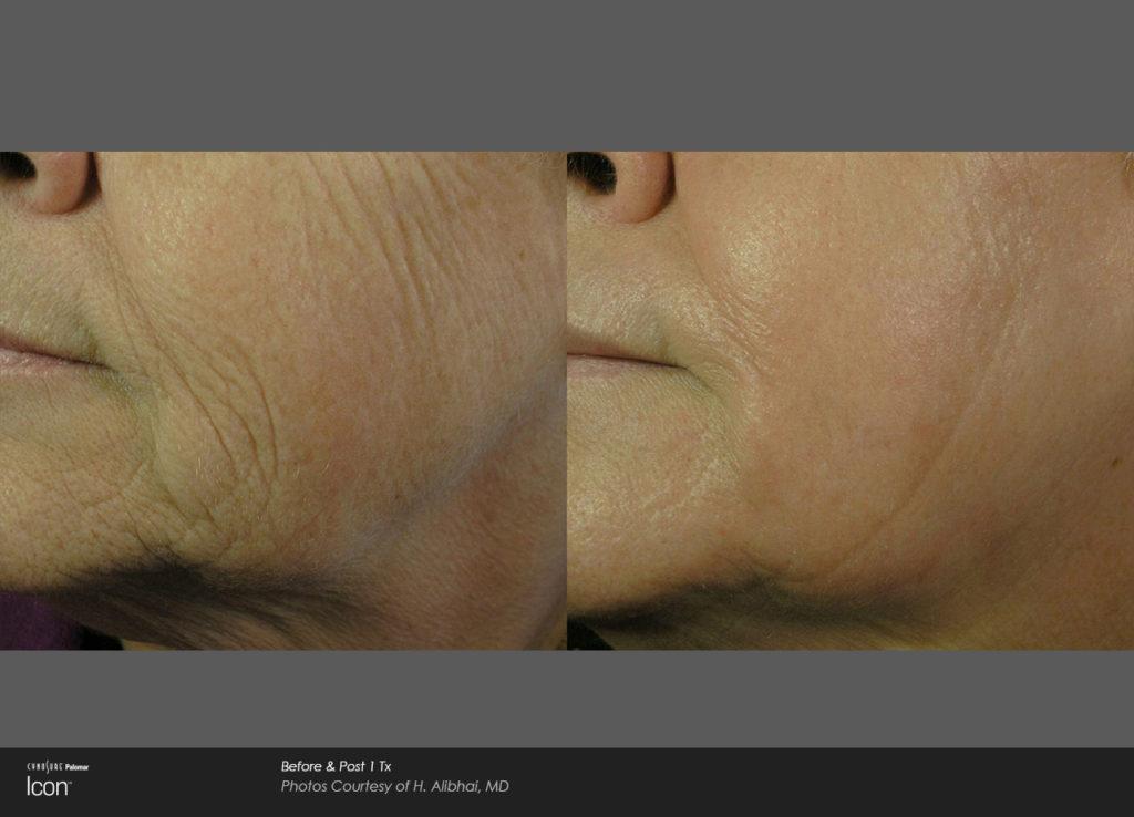 wrinkle removal - skin renewal