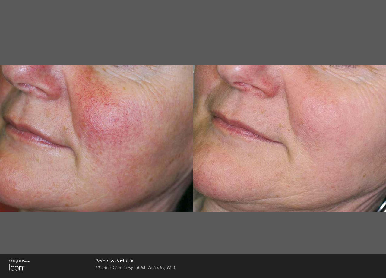 Rosacea Treatment